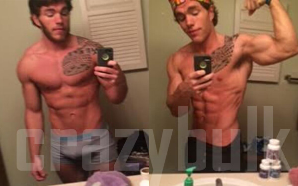 Before and Images of HGH-X2